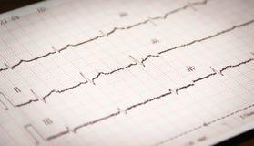 Gedruckt vom Kardiogramm Stockfoto
