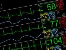 Geduldige ` s Lebenszeichen auf ICU-monito Stockfotos