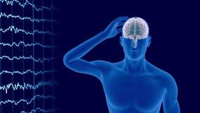 Geeft het hoofdpijn x-ray aftasten van menselijk lichaam met zichtbare 3d hersenen terug royalty-vrije illustratie