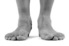 Gefallene Bögen, flache Füße Lizenzfreies Stockfoto