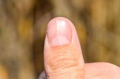 Gegabelter Nagel auf dem Daumen Ausdehnung des Nagels, traumatische Pathologie Der Nagel wird geteilt stockfotografie
