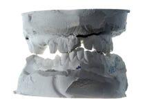 Gegoten de tanden van het pleister Stock Foto