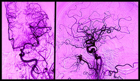 Gehirn angiograhy, Arteriographie Stockbild