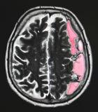 Gehirn-Blutung Stockbild