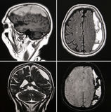 Gehirn-Blutung Lizenzfreie Stockfotos