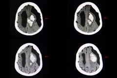 Gehirn CT-Scan, intracerebal Blutung und subarachnoid Zyste lizenzfreie stockfotografie