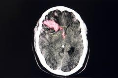 Gehirn CT-Scan, intracerebral Blutung lizenzfreies stockfoto