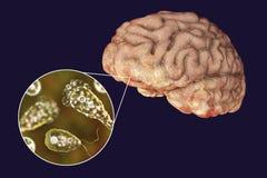 Gehirn-Essen von Amöbeninfektion, naegleriasis Lizenzfreie Stockbilder