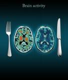 Gehirnaktivität Stockfoto