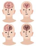 Gehirne der Demenz und des gesunden Mannes Lizenzfreies Stockbild