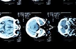 Gehirnröntgenstrahlen einer erwachsenen Person Stockbild
