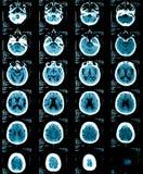 Gehirnröntgenstrahlen einer erwachsenen Person Stockbilder