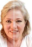 Geknitterte oder glatte Haut Lizenzfreies Stockbild