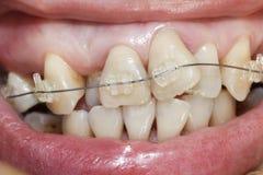 Gekrümmte Zähne mit Klammern Lizenzfreies Stockbild