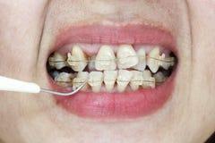 Gekrümmte Zähne mit Klammern und Plakettenentferner Stockfotografie
