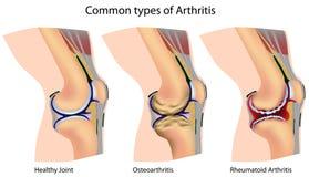 Geläufige Typen von Arthritis lizenzfreie abbildung