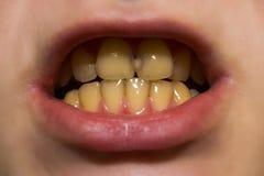 Gele tanden met bederf stock afbeelding