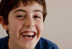 Gelukkige tiener met Steunen Royalty-vrije Stock Foto