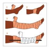 Gemeenschappelijke eerste hulpsituatie - Slangbeet vector illustratie