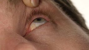 Gemeenschappelijke oogbesmetting en ontsteking, mens die vloeibare drug druipen aan zijn oog stock footage