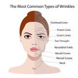 Gemensamma typer av ansikts- skrynklor Kosmetisk kirurgi Kvinnaansiktsbehandlingbehandling Royaltyfri Foto