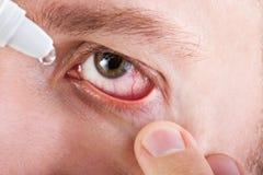 Geneeskunde eyedropper Stock Afbeelding