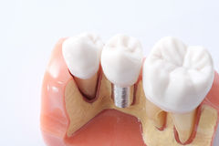 Generic dental teeth model Royalty Free Stock Images