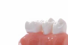 Generic dental teeth model royalty free stock photos