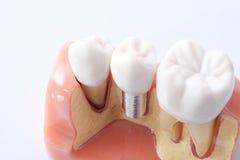 Generisk tand- tandmodell Royaltyfria Bilder