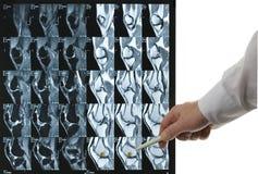 Genou 2 de MRI Image stock