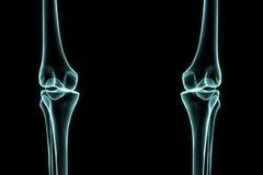 Genou gauche et droit de rayon X Images libres de droits