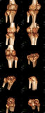 Genou tridimensionnel Image stock