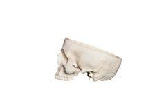Geopende schedel Royalty-vrije Stock Afbeeldingen