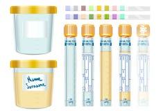 Geplaatst, lege urineonderzoek Gele GLB Buizen, gevuld, bevroren en dipis vector illustratie