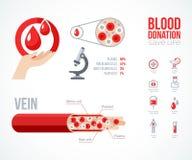 Geplaatste de Pictogrammen van donorinfographics Stock Foto