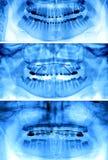 Geräte benutzt für Zahnregulierungen stockfotografie