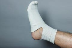 Gerades Bein mit einem großen Loch in der Socke Lizenzfreies Stockbild