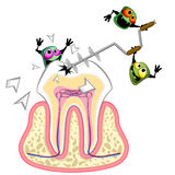 Germs drilling tooth. Tooth section and aggressive germs with big drill Royalty Free Stock Photo