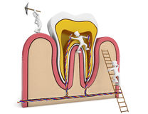 Germs drilling tooth Royalty Free Stock Photos