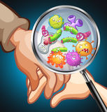 Germs on human hands Royalty Free Stock Photos