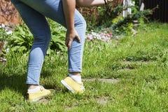 Geschädigtes Bein mischt Frauen mit Stockfotografie