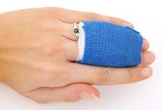 Gescheurd ligament en gebroken been Royalty-vrije Stock Foto