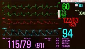 Geschrittener Rhythmus mit vorzeitigem Herz-Schlag Stockbild