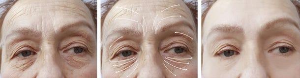 0ab358097d5b Gesicht, ältere Frau, Falten, Geduldige Kontrastkorrektur Des ...