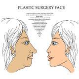 Gesicht 5 der plastischen Chirurgie Lizenzfreies Stockbild