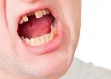 Gesicht des jungen Mannes mit dem gebrochenen Zahn Stockbilder
