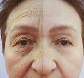 Gesicht einer Frau der älteren Personen knittert die Hydratisierungstherapie der Gesundheit, die vor und nach Verfahren klinisch  stockbild