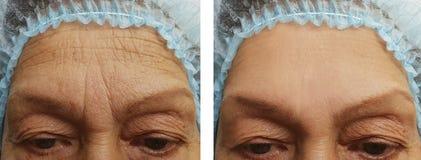 Gesicht einer Frau der älteren Personen knittert die Therapie, die vor und nach Verfahren klinisch ist stockfotografie