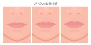 Gesicht front_Lip Förderung Stockbild