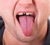 Gesicht mit dem gebrochenen Zahn und der Zunge stockfotografie